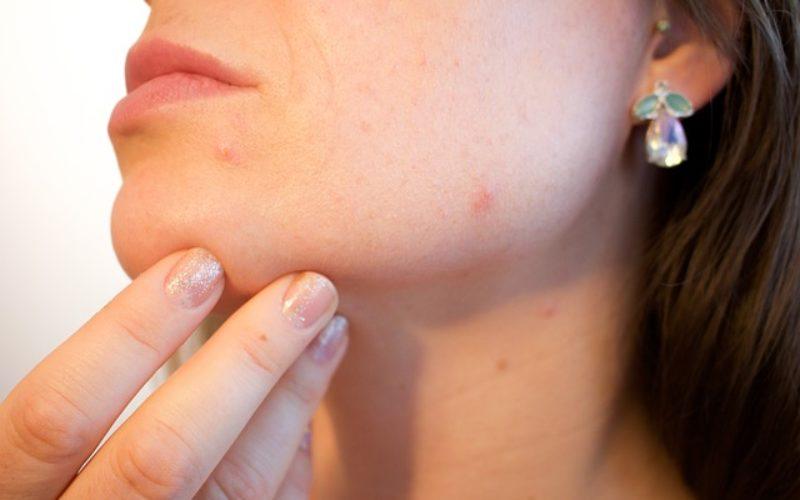 El acné: ¿Cómo prevenirlo?
