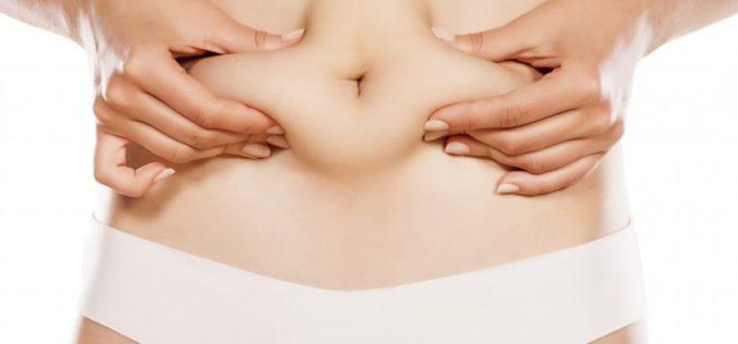 Liposucción: ¿qué debemos hacer para que el resultado sea permanente?